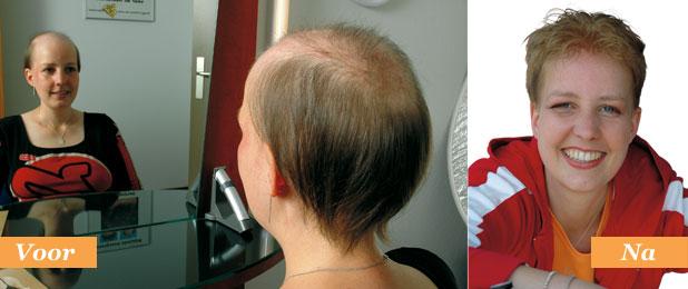 Alopecia androgenetica is de meest voorkomende vorm van haaruitval bij volwassenen. Wij bieden schitterende haarwerken die niet van echt zijn te onderscheiden.