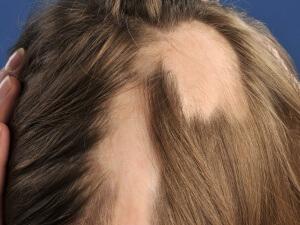alopecia-areata-4
