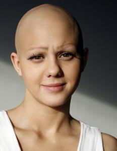 alopecia_universalis