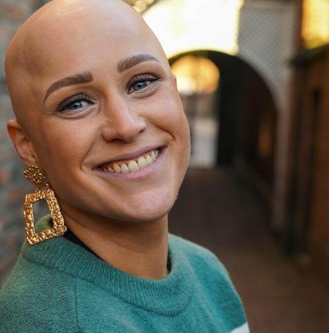 Alopecia is een auto immuunziekte.