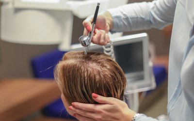 Haargroei Laser Therapie een nieuwe methode tegen haarverlies (HLT)