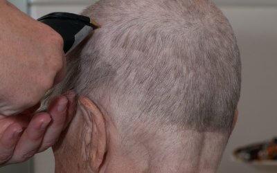 Mijn hoofd kaal scheren, waarom?